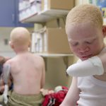 Africans with albinism face discrimination, attacks [program]